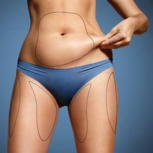 Aqualyx Fat Dissolving Treatment