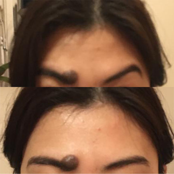 Before and After Anti-wrinkle Brow Correction