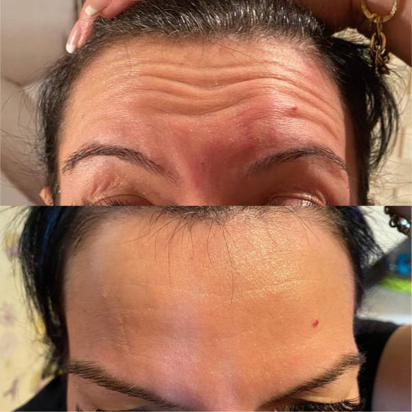 Before and After Forehead Anti-Wrinkle Treatment