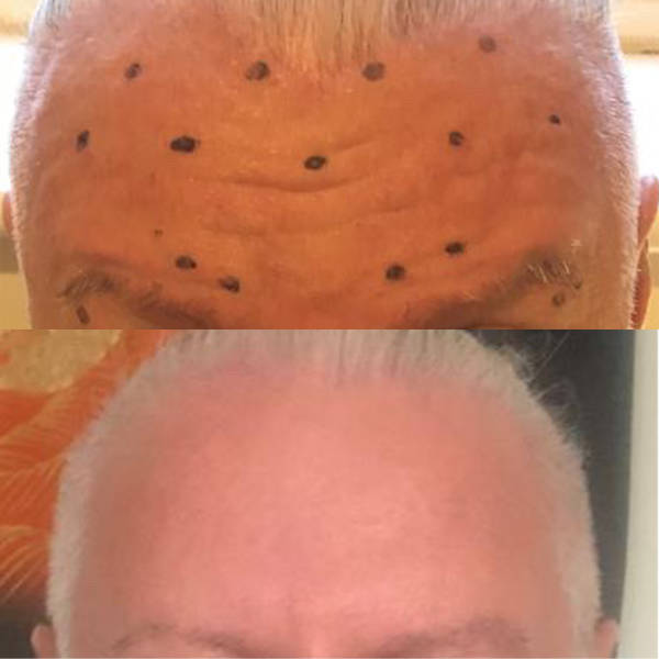 Before and After Forehead Anti-Wrinkle Treatment_2