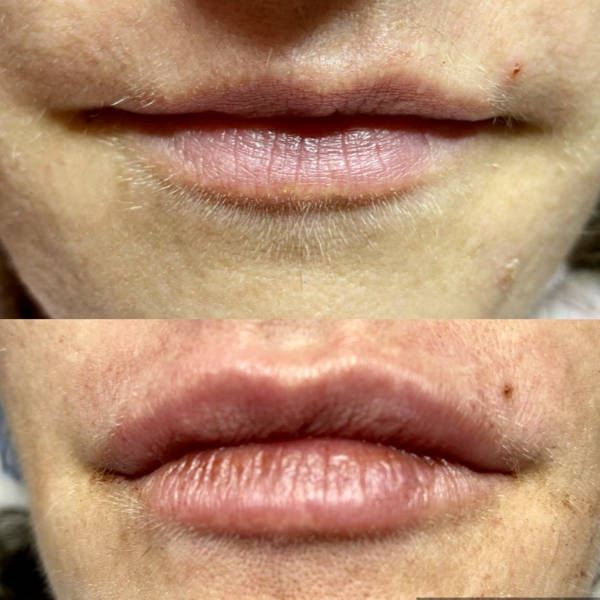 Before and After Lip Filler_2