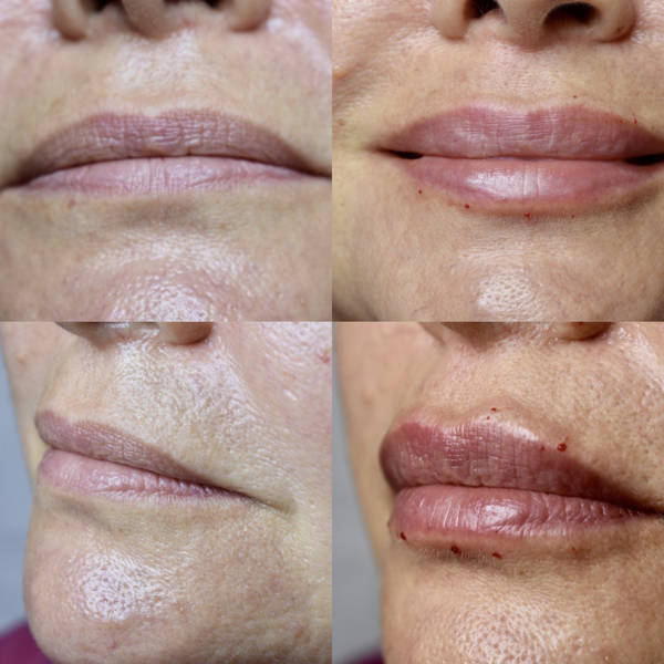 Before and After Lip Filler_3