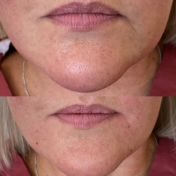 Before and After Marionette Treatment