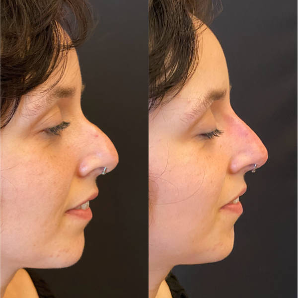 Before and After Non-surgical Rhinoplasty_2