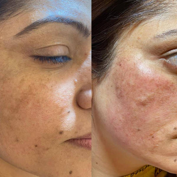 Before and After PRP Therapy Treatment