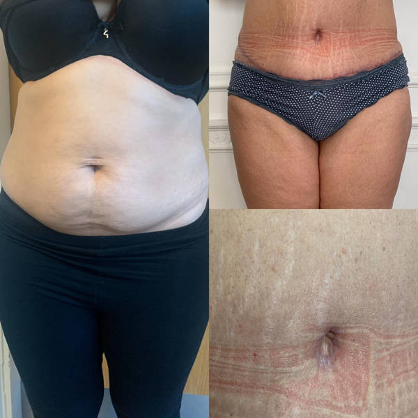 Non-surgical Treatment for Stretch Marks